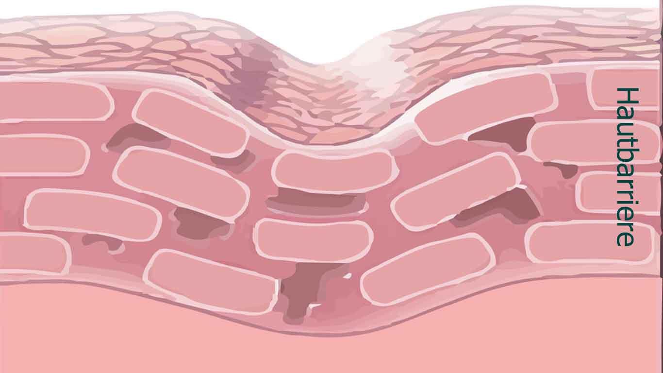 Ist die Hautbarriere durchlässig, reagiert die Haut empfindlicher auf äußere Reize.