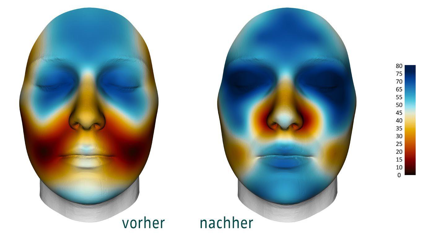 Das Hautmodell zeigt eine erhöhte Feuchtigkeit nach der Anwendung.